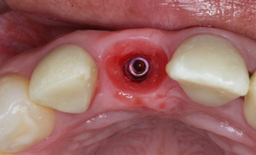 Implantes_2